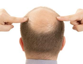 Combatir el problema de la alopecia